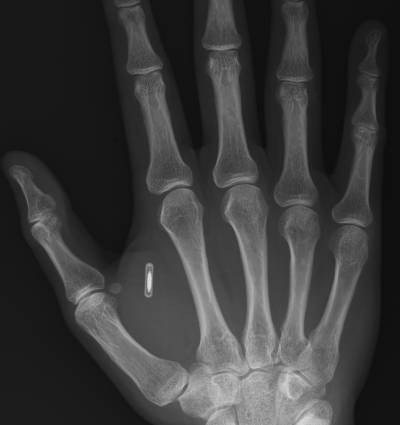 RFID_In_Hand